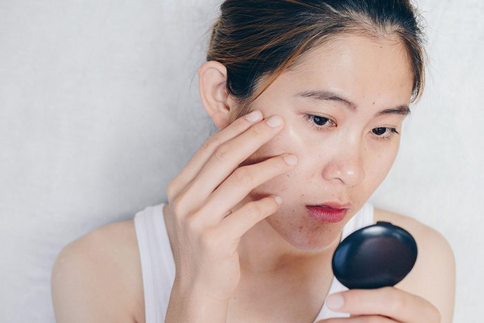 What Is Fungal Acne - Causes, Symptoms, Remedies For Skincare